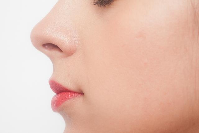 白ニキビ 鼻の横